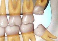 Protinių dantų rovimas: ką svarbu apie tai žinoti?