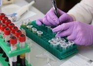 Patikimas ir nebrangus prostatos vėžio tyrimas